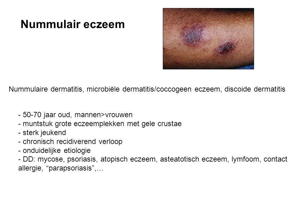 Nummulair eczeem Nummulaire dermatitis, microbiële dermatitis/coccogeen eczeem, discoide dermatitis - 50-70 jaar oud, mannen>vrouwen - muntstuk grote eczeemplekken met gele crustae - sterk jeukend - chronisch recidiverend verloop - onduidelijke etiologie - DD: mycose, psoriasis, atopisch eczeem, asteatotisch eczeem, lymfoom, contact allergie, parapsoriasis ,…