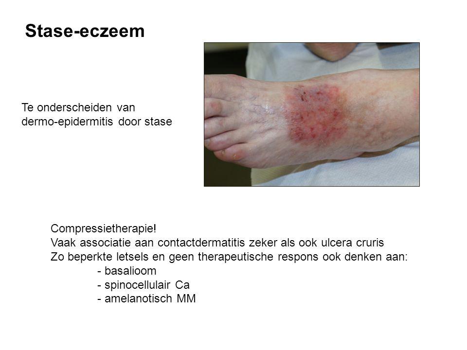 Stase-eczeem Compressietherapie! Vaak associatie aan contactdermatitis zeker als ook ulcera cruris Zo beperkte letsels en geen therapeutische respons