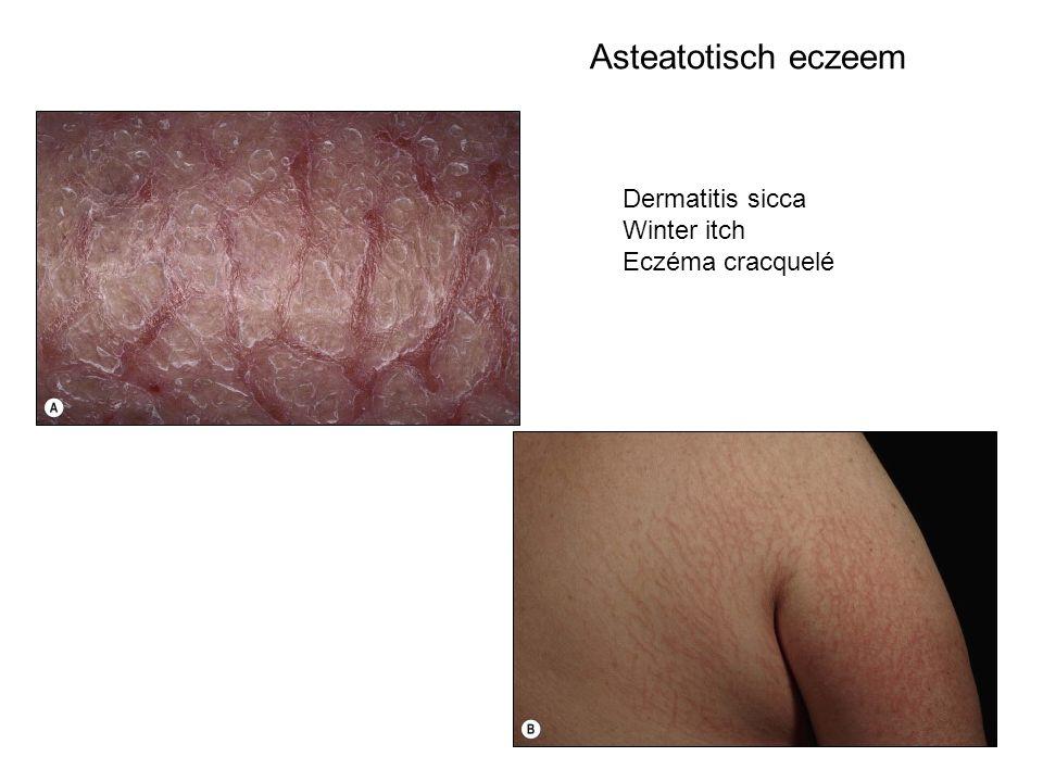 Asteatotisch eczeem Dermatitis sicca Winter itch Eczéma cracquelé