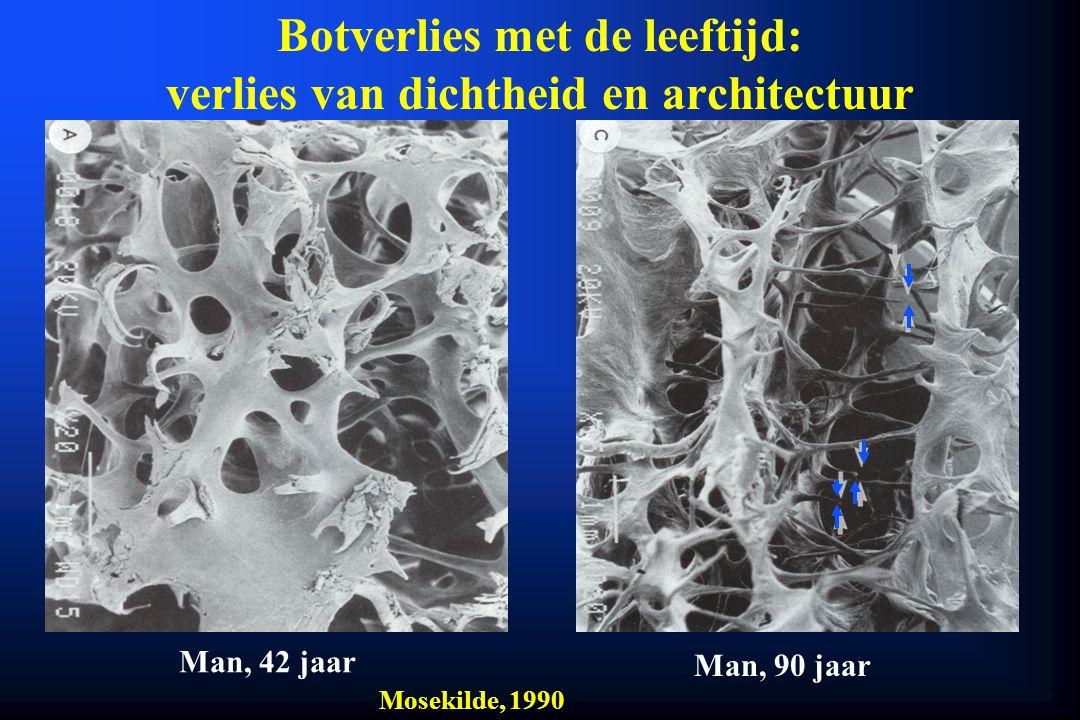 Botverlies met de leeftijd: verlies van dichtheid en architectuur Man, 42 jaar Man, 90 jaar Mosekilde, 1990