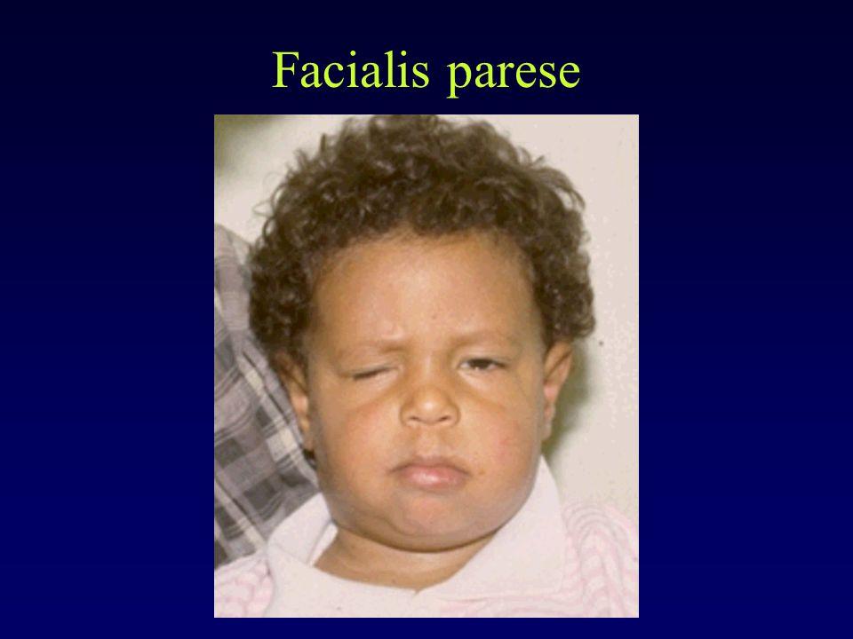 Facialis parese