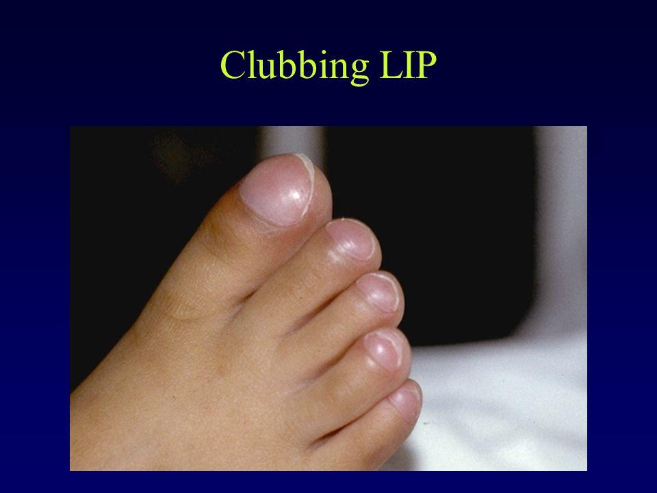 Clubbing LIP