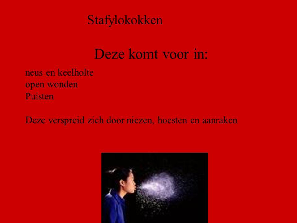 B.M.Dijkman ROC ASA, Amsterdam Zoek eens op..( 5 minuten) »Stafylokokken »Waar komen deze voor.