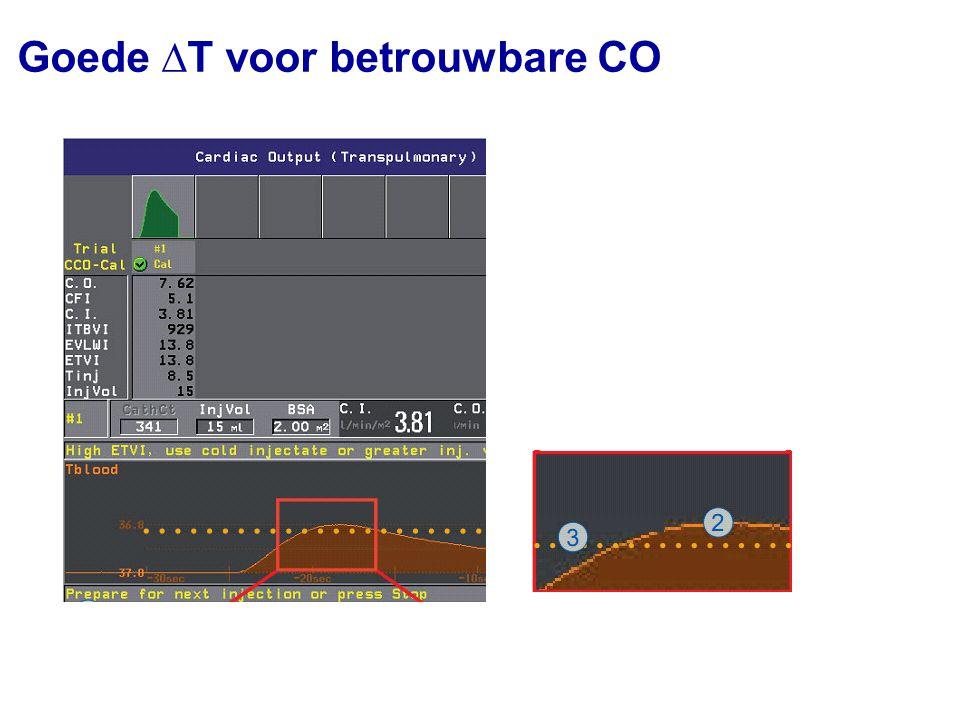 Goede curve voor continue CO Melding monitor: Geen goede arteriële curve, CCO niet mogelijk Goede arteriële curve t [s] P [mmHg]