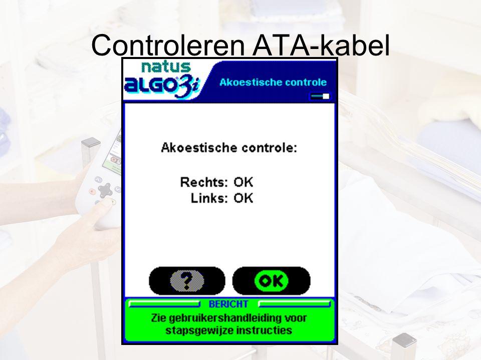 Controleren ATA-kabel