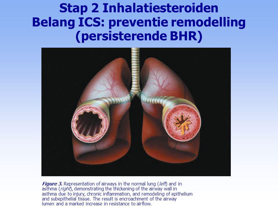 Stap 1 Intermitterend astma (symptomen  2 maal per week) l nieuwe patiënt: Kortwerkend Beta-2-mimeticum, gebruik 'z.n.' l inspanningsastma: -KWB2, 1-2 d 1 i.