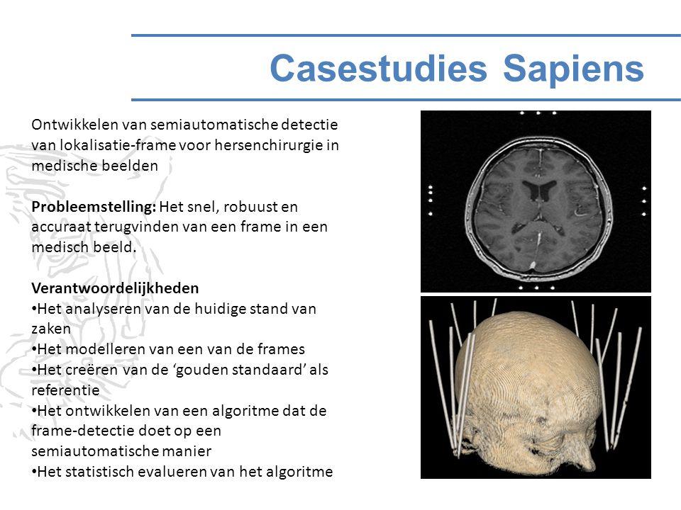 Casestudies Sapiens Ontwikkelen van semiautomatische detectie van lokalisatie-frame voor hersenchirurgie in medische beelden Probleemstelling: Het snel, robuust en accuraat terugvinden van een frame in een medisch beeld.