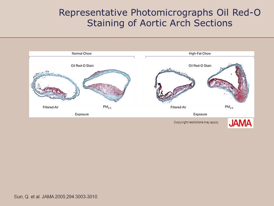 Copyright restrictions may apply. Sun, Q. et al. JAMA 2005;294:3003-3010. Representative Photomicrographs Oil Red-O Staining of Aortic Arch Sections