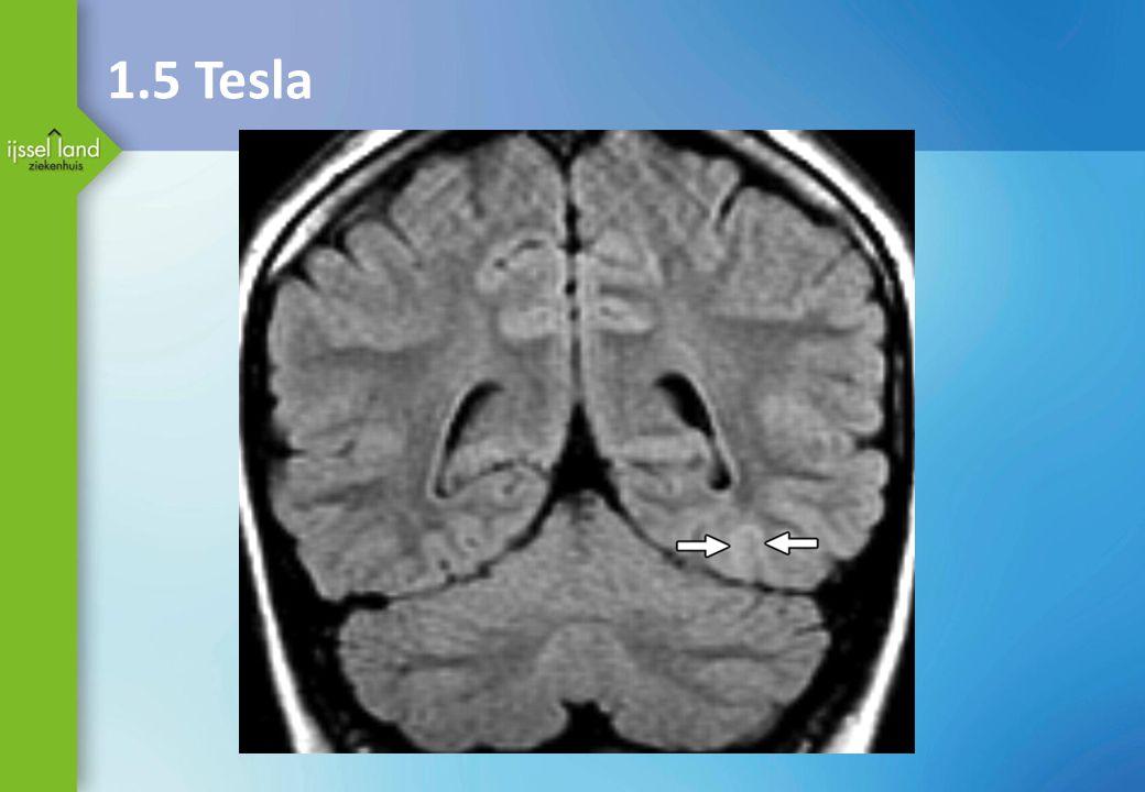 1.5 Tesla