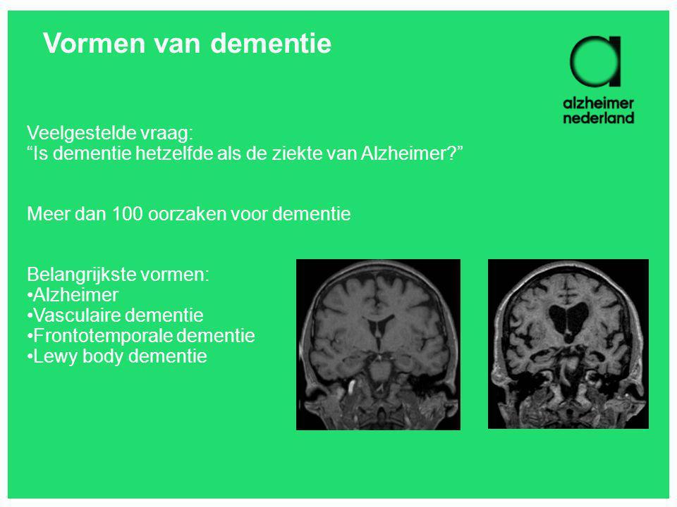 """Vormen van dementie Veelgestelde vraag: """"Is dementie hetzelfde als de ziekte van Alzheimer?"""" Meer dan 100 oorzaken voor dementie Belangrijkste vormen:"""