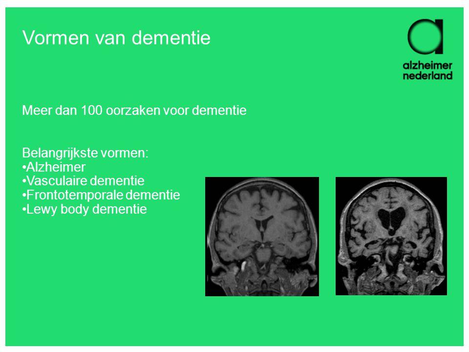 Vormen van dementie Meer dan 100 oorzaken voor dementie Belangrijkste vormen: Alzheimer Vasculaire dementie Frontotemporale dementie Lewy body dementi