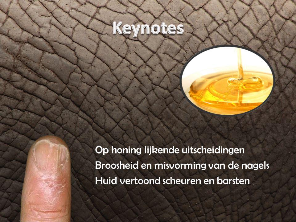 Op honing lijkende uitscheidingen Broosheid en misvorming van de nagels Huid vertoond scheuren en barsten