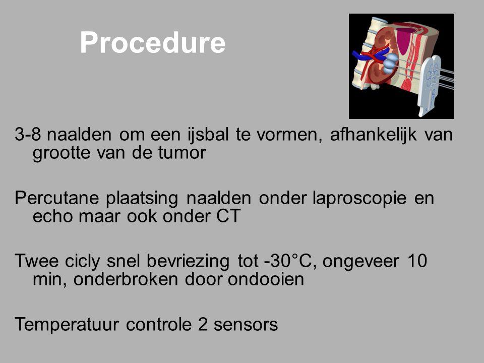 3-8 naalden om een ijsbal te vormen, afhankelijk van grootte van de tumor Percutane plaatsing naalden onder laproscopie en echo maar ook onder CT Twee