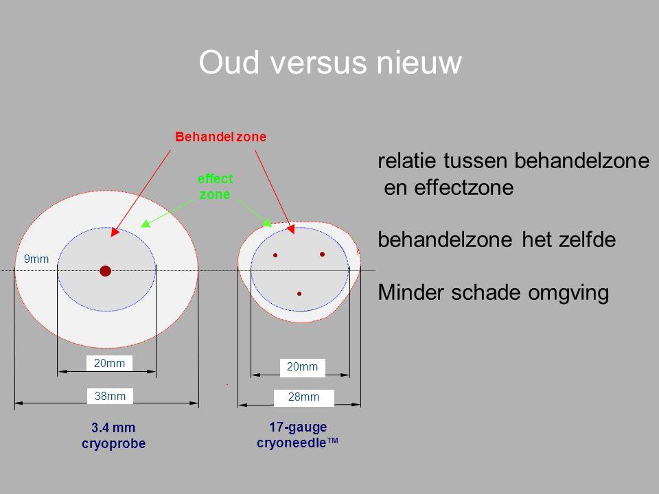 Oud versus nieuw 3.4 mm cryoprobe 17-gauge cryoneedle™ Behandel zone effect zone 20mm 38mm 20mm 28mm 20mm 9mm relatie tussen behandelzone en effectzone behandelzone het zelfde Minder schade omgving