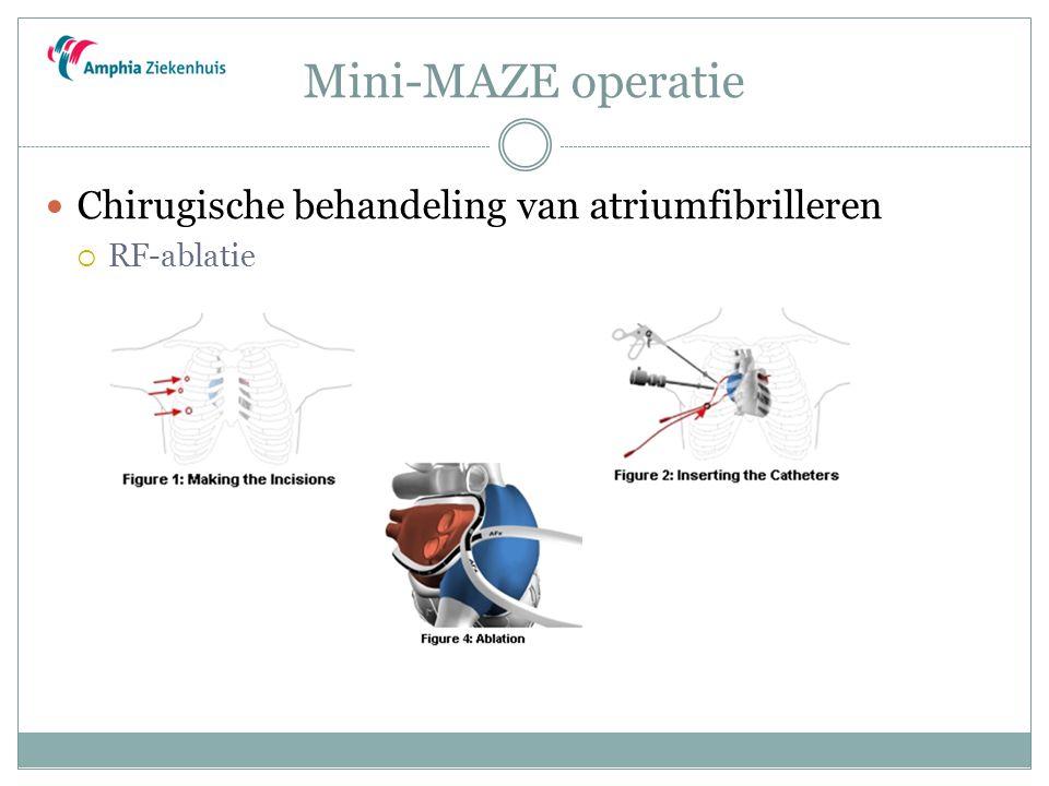 Mini-MAZE operatie Chirugische behandeling van atriumfibrilleren  RF-ablatie