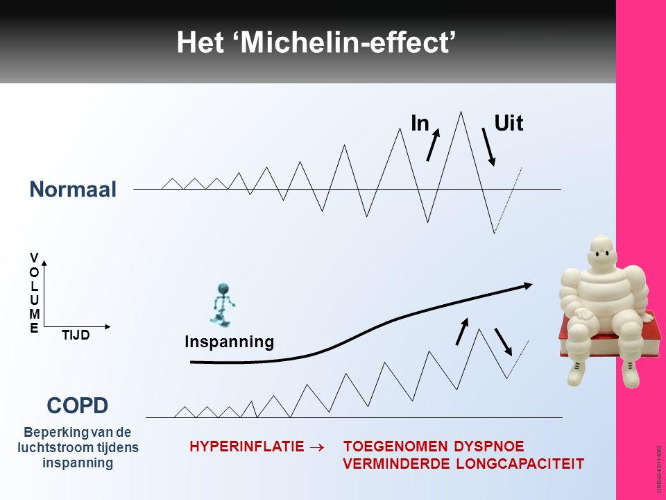 ONB-02-03/11-6982 Inspanning Normaal COPD Beperking van de luchtstroom tijdens inspanning TIJD VOLUMEVOLUME InUit Het 'Michelin-effect' HYPERINFLATIE