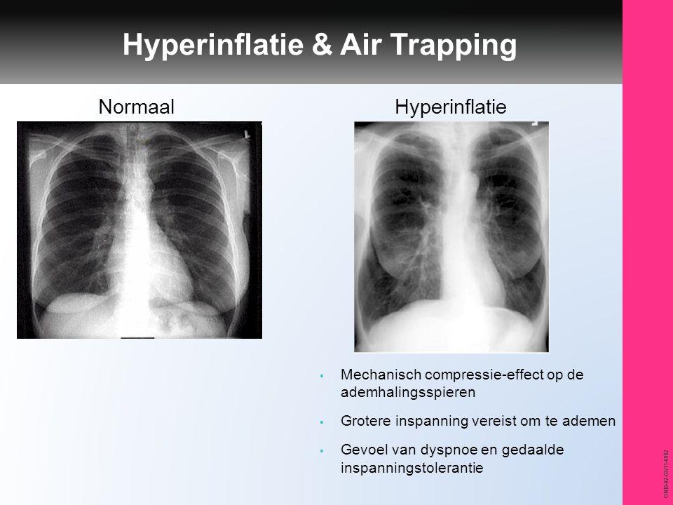 ONB-02-03/11-6982 Hyperinflatie & Air Trapping NormaalHyperinflatie  Mechanisch compressie-effect op de ademhalingsspieren  Grotere inspanning verei