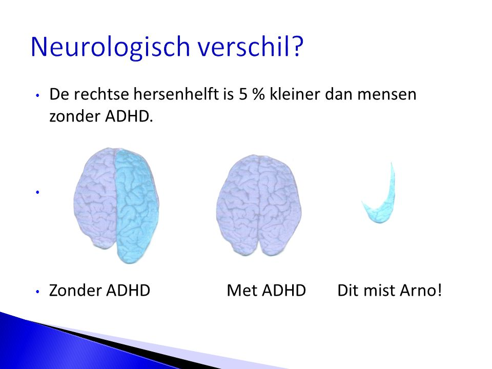 De rechtse hersenhelft is 5 % kleiner dan mensen zonder ADHD. - = Zonder ADHDMet ADHD Dit mist Arno!