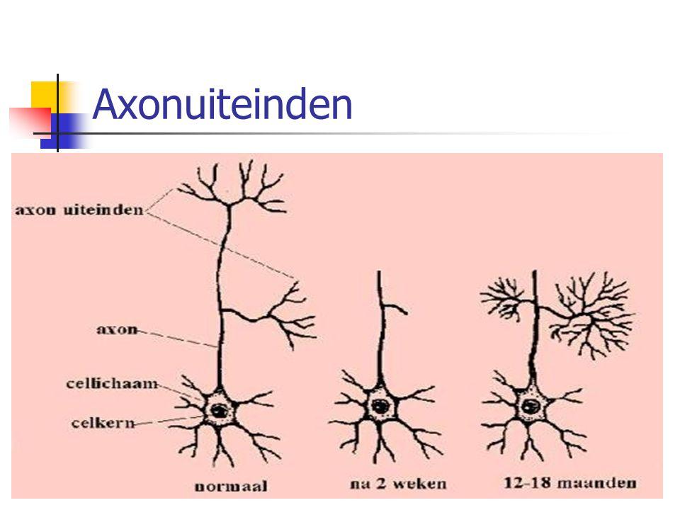 Axonuiteinden