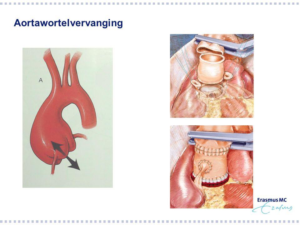 Aortawortelvervanging