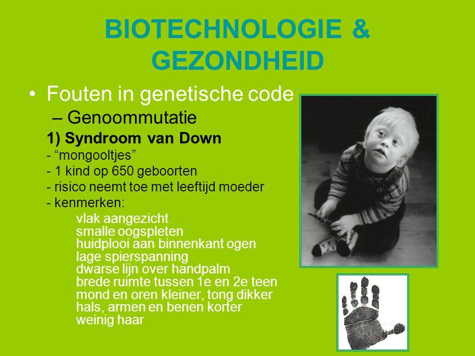 """BIOTECHNOLOGIE & GEZONDHEID Fouten in genetische code –Genoommutatie 1) Syndroom van Down - """"mongooltjes"""" - 1 kind op 650 geboorten - risico neemt toe"""
