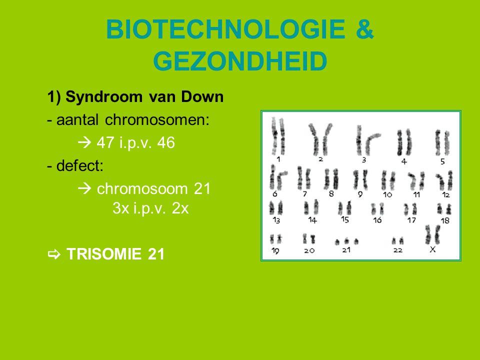 BIOTECHNOLOGIE & GEZONDHEID 1) Syndroom van Down - aantal chromosomen:  47 i.p.v. 46 - defect:  chromosoom 21 3x i.p.v. 2x  TRISOMIE 21