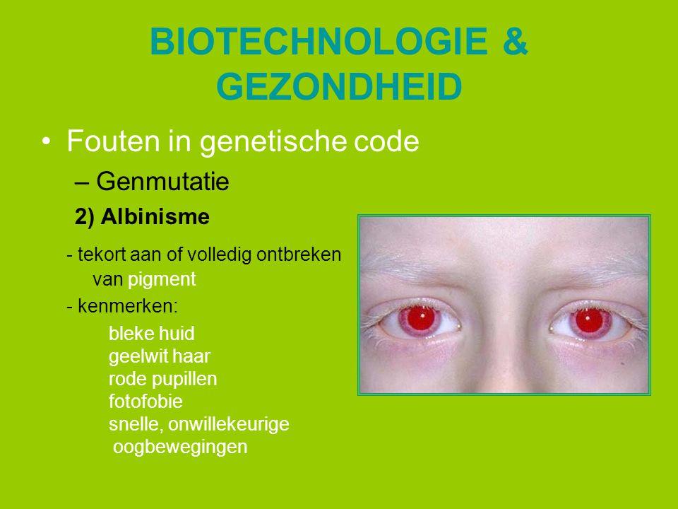 BIOTECHNOLOGIE & GEZONDHEID Fouten in genetische code –Genmutatie 2) Albinisme - tekort aan of volledig ontbreken van pigment - kenmerken: bleke huid