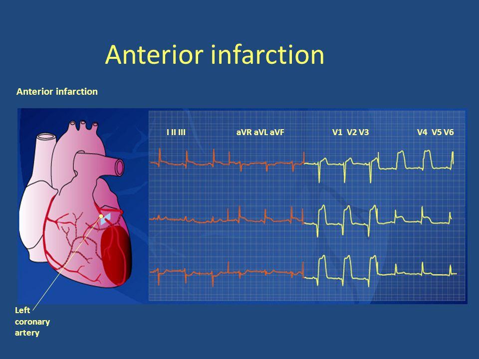 Anterior infarction I II III aVR aVL aVFV1 V2 V3V4 V5 V6 Left coronary artery