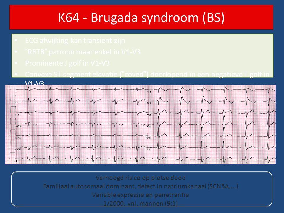 """ECG afwijking kan transient zijn """"RBTB"""" patroon maar enkel in V1-V3 Prominente J golf in V1-V3 Convexe ST segment elevatie (""""coved"""") doorlopend in een"""