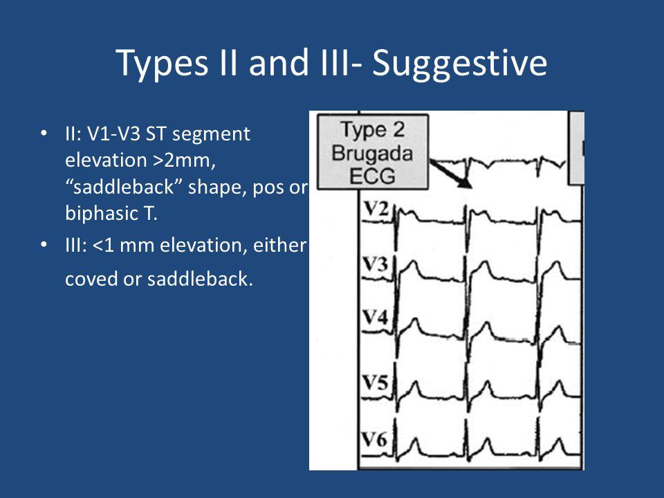 "Types II and III- Suggestive II: V1-V3 ST segment elevation >2mm, ""saddleback"" shape, pos or biphasic T. III: <1 mm elevation, either coved or saddleb"