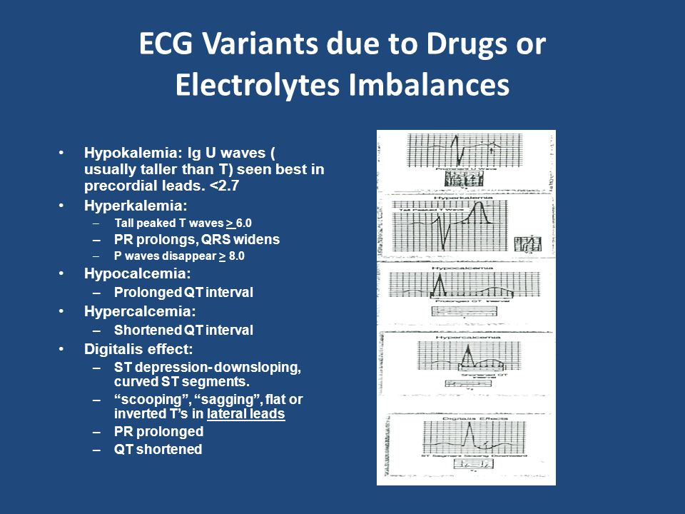 ECG Variants due to Drugs or Electrolytes Imbalances Hypokalemia: lg U waves ( usually taller than T) seen best in precordial leads. <2.7 Hyperkalemia
