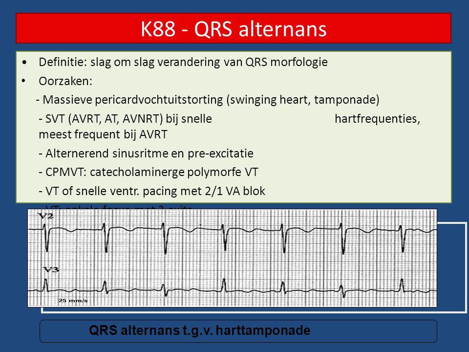 K88 - QRS alternans Definitie: slag om slag verandering van QRS morfologie Oorzaken: - Massieve pericardvochtuitstorting (swinging heart, tamponade) -