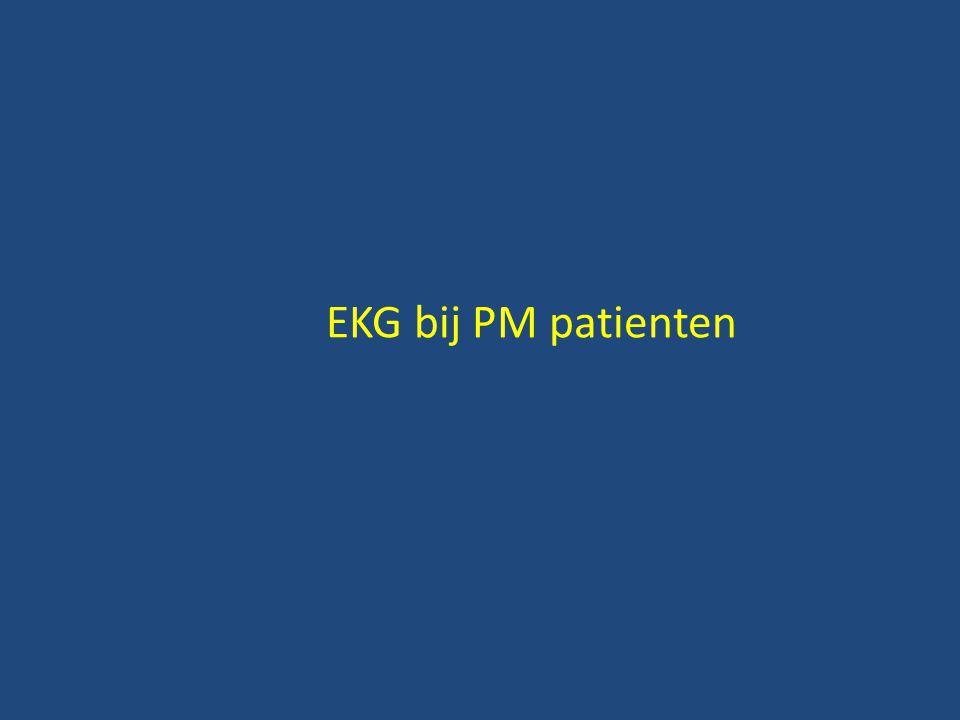 EKG bij PM patienten