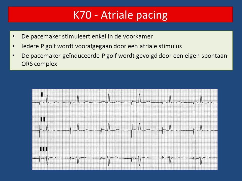 K70 - Atriale pacing De pacemaker stimuleert enkel in de voorkamer Iedere P golf wordt voorafgegaan door een atriale stimulus De pacemaker-geïnduceerd