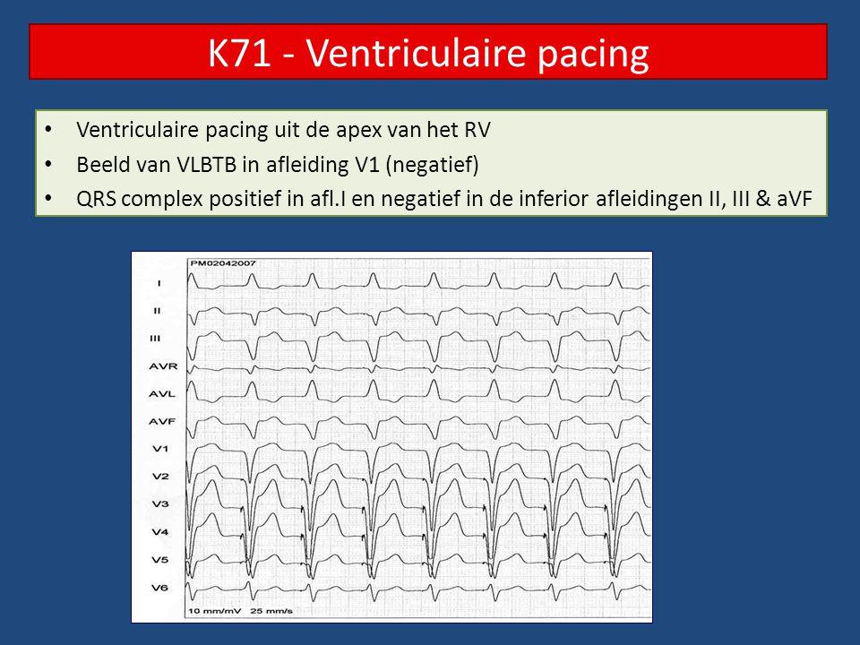 Ventriculaire pacing uit de apex van het RV Beeld van VLBTB in afleiding V1 (negatief) QRS complex positief in afl.I en negatief in de inferior afleid