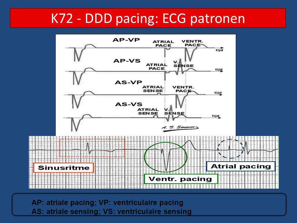 K72 - DDD pacing: ECG patronen AP: atriale pacing; VP: ventriculaire pacing AS: atriale sensing; VS: ventriculaire sensing