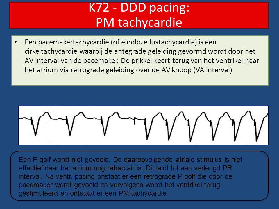 Een pacemakertachycardie (of eindloze lustachycardie) is een cirkeltachycardie waarbij de antegrade geleiding gevormd wordt door het AV interval van d