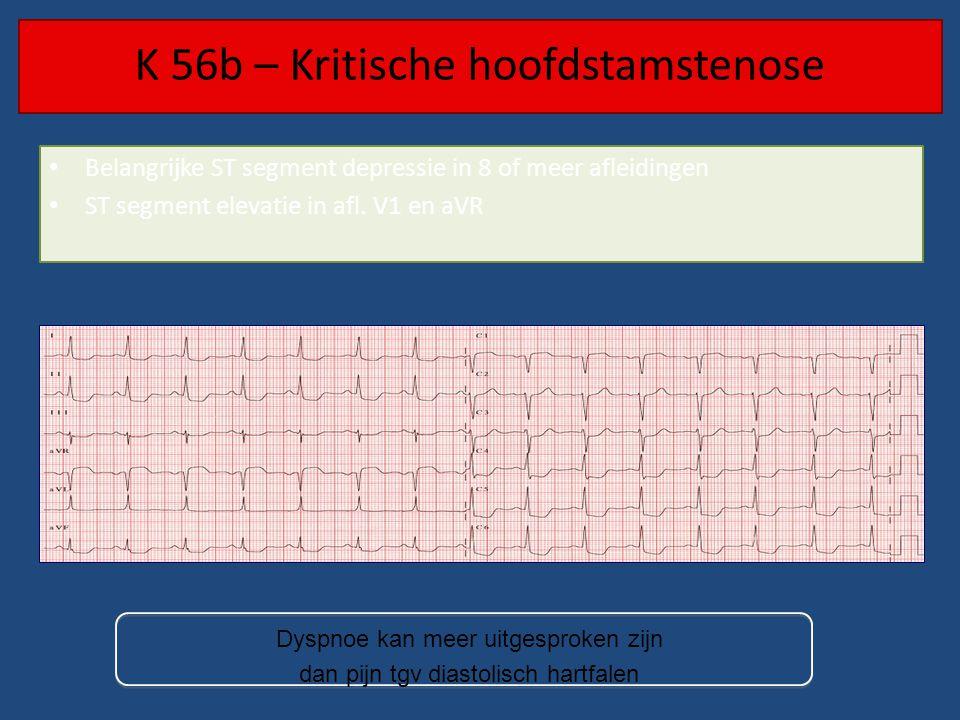 K 56b – Kritische hoofdstamstenose Belangrijke ST segment depressie in 8 of meer afleidingen ST segment elevatie in afl. V1 en aVR Dyspnoe kan meer ui
