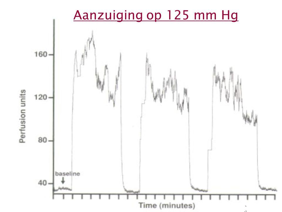 20 Aanzuiging op 125 mm Hg