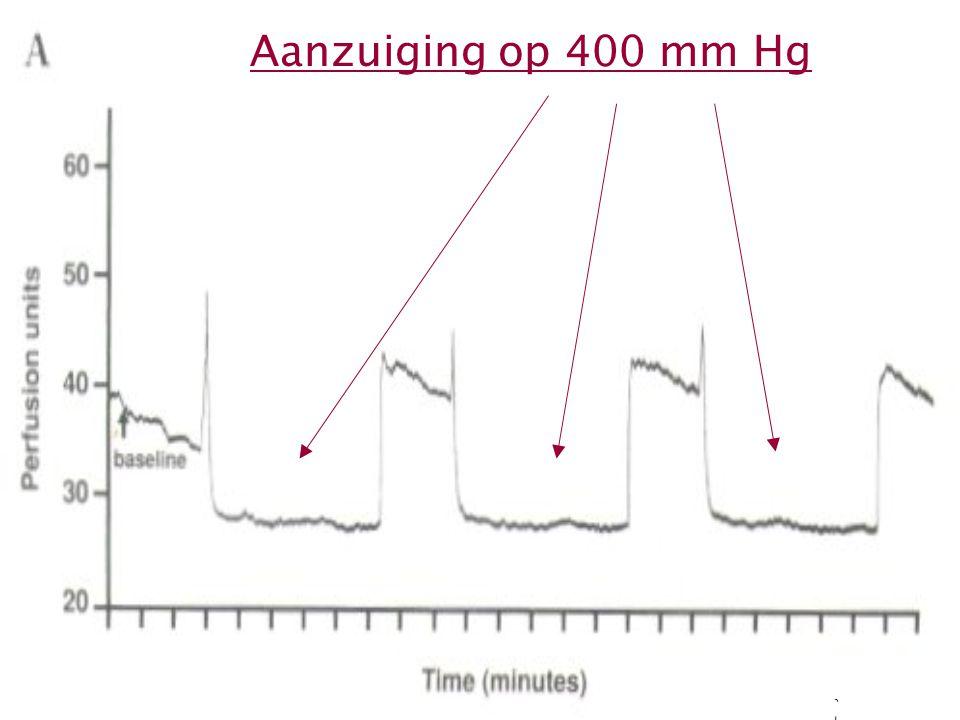 21 Aanzuiging op 400 mm Hg