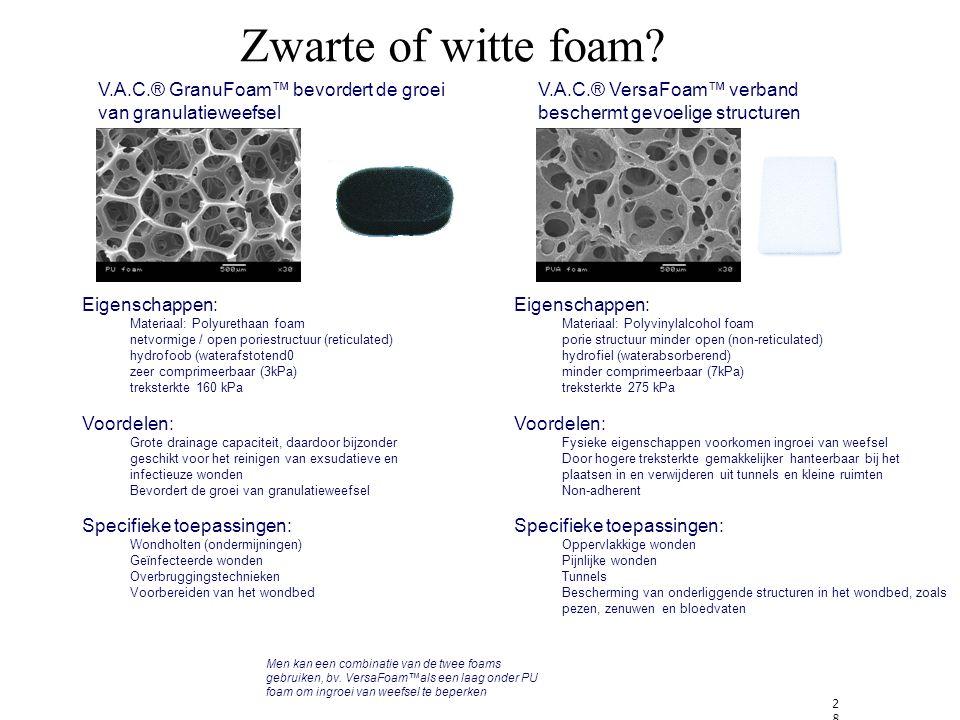 28 Zwarte of witte foam.