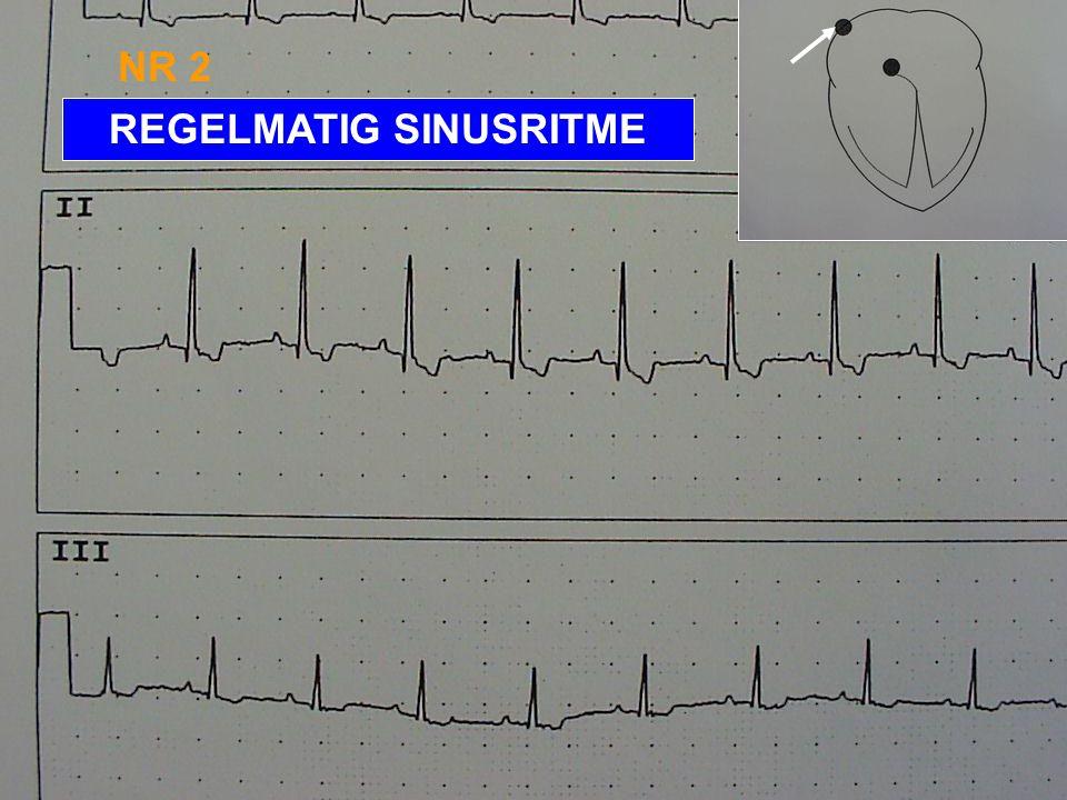 EKG NR 1: SINUSARITMIE - HARTFREQUENTIE MEESTAL < 120/MIN - VOOR IEDERE P-GOLF EEN QRS-COMPLEX EN VOOR IEDER QRS-COMPLEX EEN P-GOLF - ONREGELMATIG RR-
