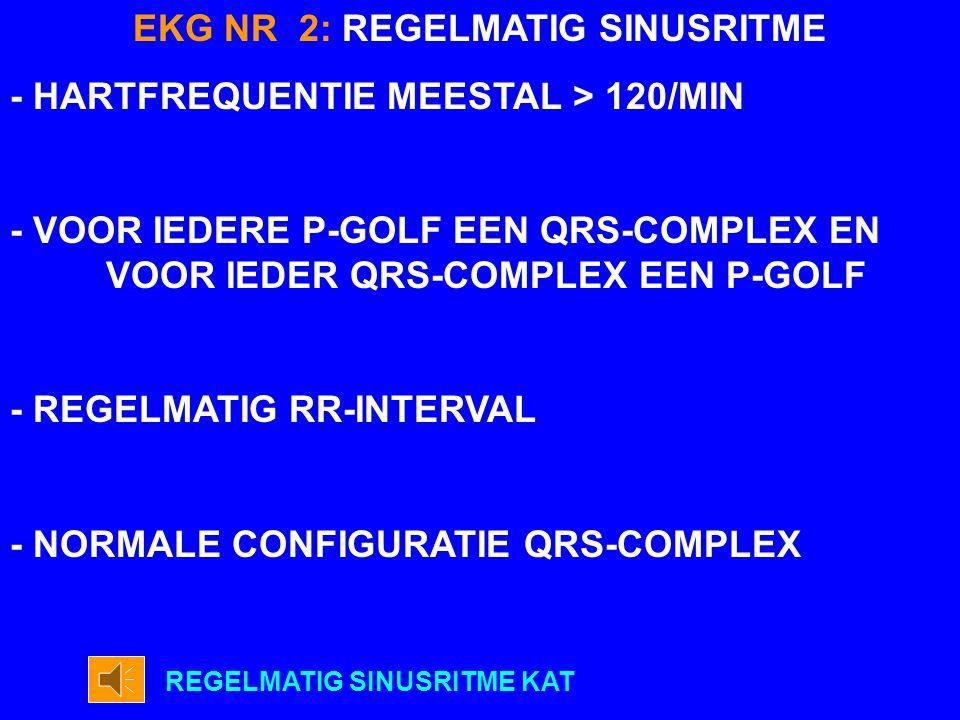 NR 2 REGELMATIG SINUSRITME