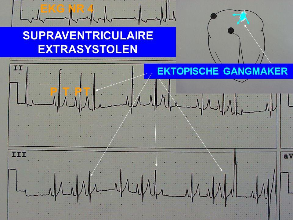 EKG NR 2: REGELMATIG SINUSRITME - HARTFREQUENTIE MEESTAL > 120/MIN - VOOR IEDERE P-GOLF EEN QRS-COMPLEX EN VOOR IEDER QRS-COMPLEX EEN P-GOLF - REGELMA