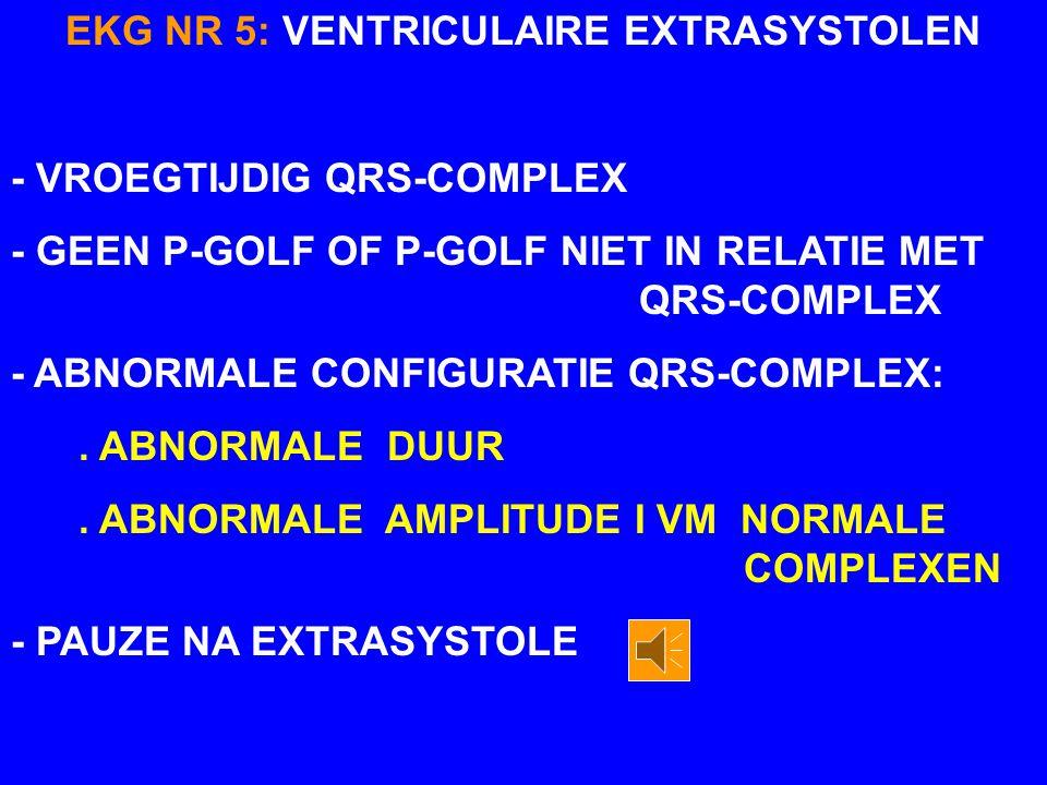 EKG NR 5 VENTRICULAIRE EXTRASYSTOLEN EKTOPISCHE GANGMAKER P T T PPT