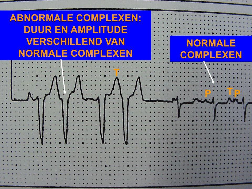 EKG NR 5: VENTRICULAIRE EXTRASYSTOLEN - VROEGTIJDIG QRS-COMPLEX - GEEN P-GOLF OF P-GOLF NIET IN RELATIE MET QRS-COMPLEX - ABNORMALE CONFIGURATIE QRS-C