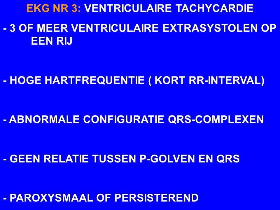 EKTOPISCHE GANGMAKER EKG NR 3 (KAT) VENTRICULAIRE TACHYCARDIE