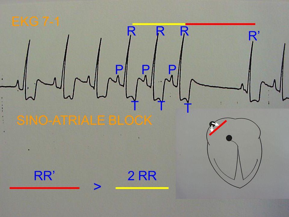 EKG NR 6: ATRIUMFIBRILLATIE - MEESTAL HOGE HARTFREQUENTIE - ONREGELMATIGE RR-INTERVALLEN (ONREGELMATIGE ONREGELMATIGHEID) - GEEN P-GOLVEN, MAAR f-GOLV