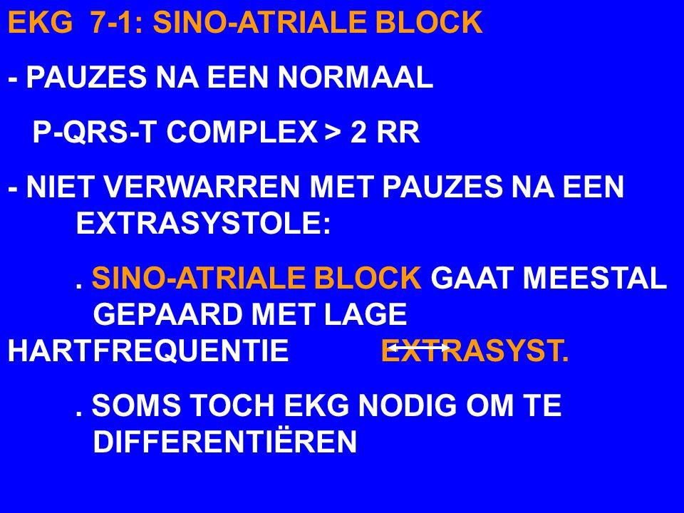 T RRR > R' RR'2 RR SINO-ATRIALE BLOCK EKG 7-1 PPP TT