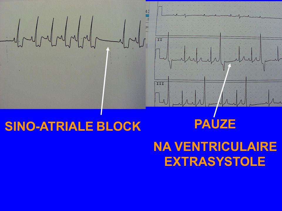 EKG 7-1: SINO-ATRIALE BLOCK - PAUZES NA EEN NORMAAL P-QRS-T COMPLEX > 2 RR - NIET VERWARREN MET PAUZES NA EEN EXTRASYSTOLE:. SINO-ATRIALE BLOCK GAAT M